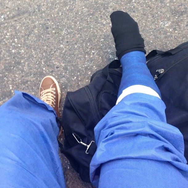 Kipsattu jalka